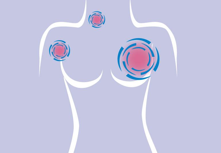 Kanker Payudara Bagian 2