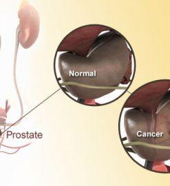 Panduan Untuk Kanker Prostat
